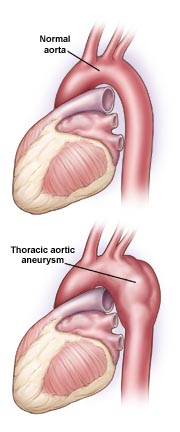 Thoracic Aortic Aneurysm (TAA)