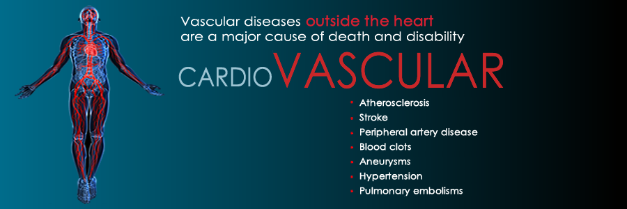 Vascular Disease outside of the heart